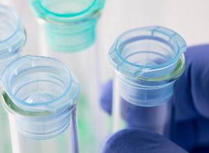 La recherche médicale dans le lupus : vers des traitements moins toxiques et la médecine personnalisée